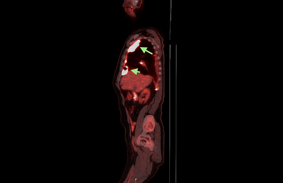 Sagittal-view,-PET-scan.-Evidence-of-pleural-based-bases-of-right-hemithorax-(green-arrows).