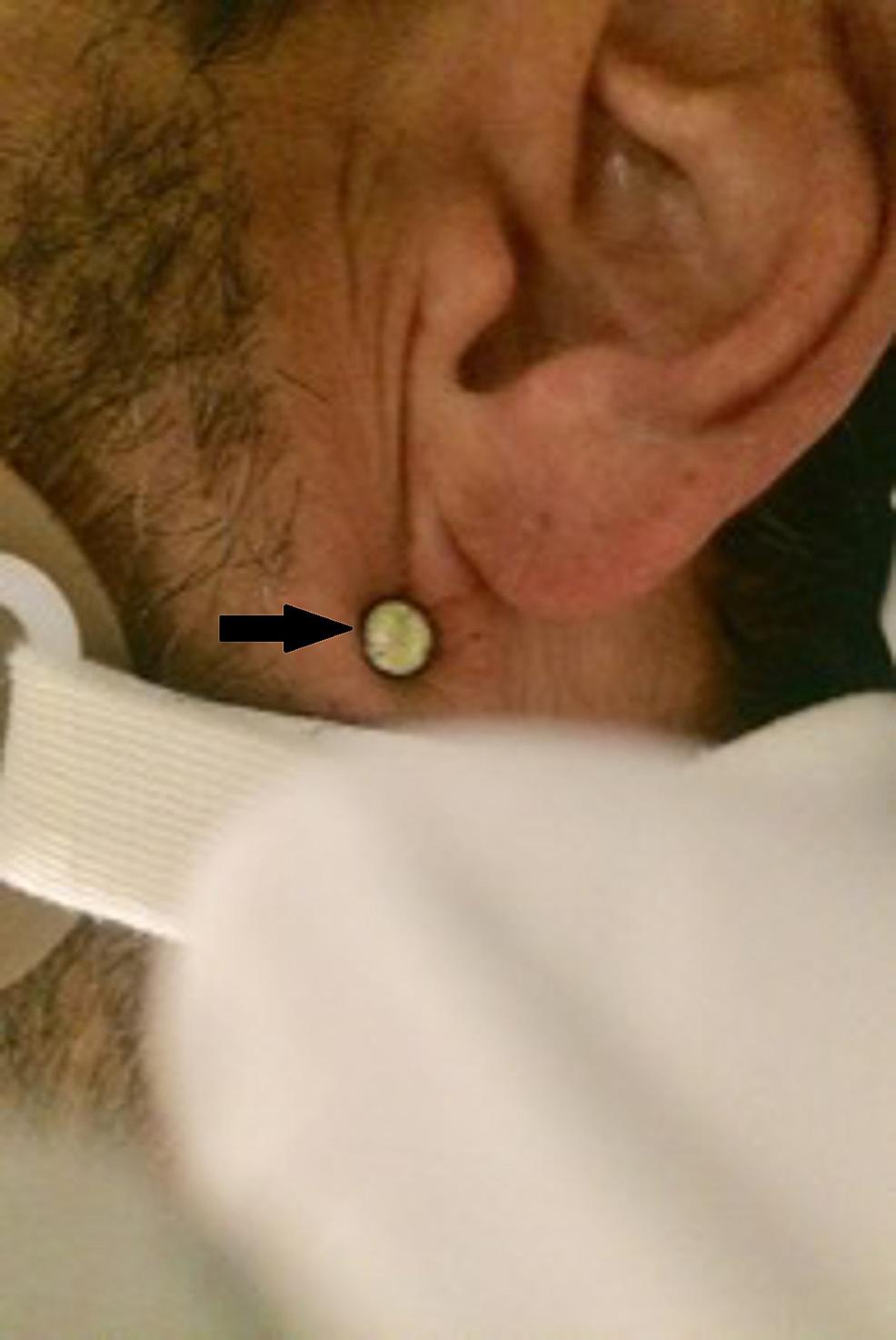 Nail-head-visible-in-the-left-retromandibular-region---neck-zone-3-injury