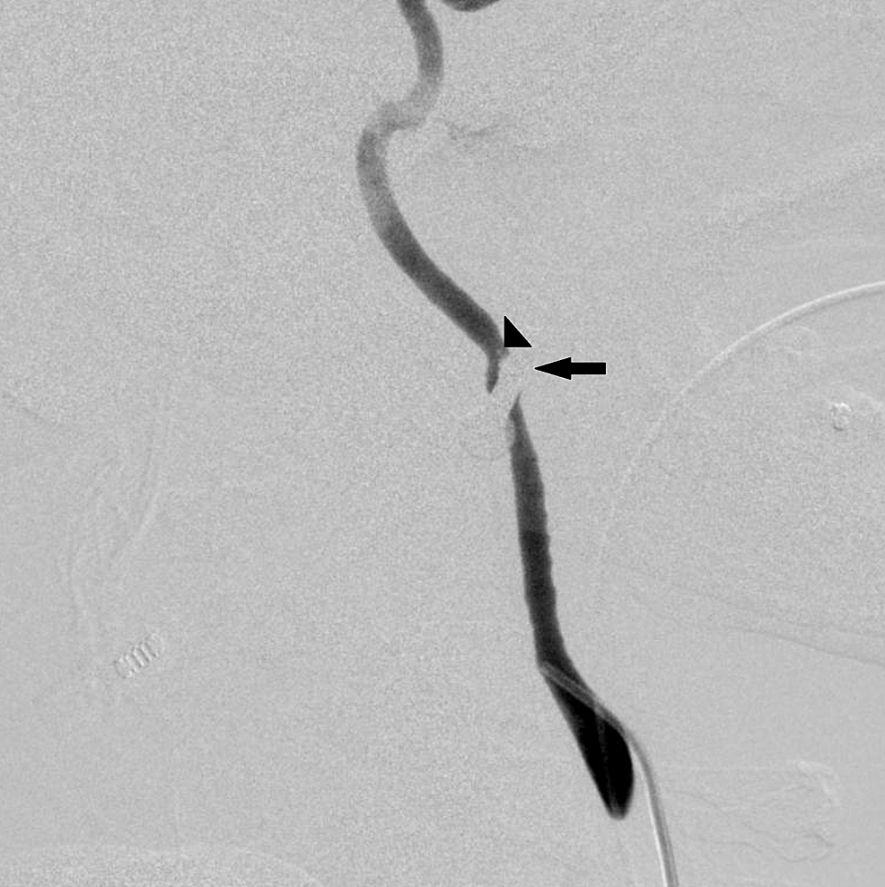 Left-internal-carotid-artery-angiogram-demonstrating-spasm-at-the-level-of-the-nail-injury-and-filling-defect-consistent-with-dissection-(arrowhead)-just-distal-to-the-nail-(arrow)