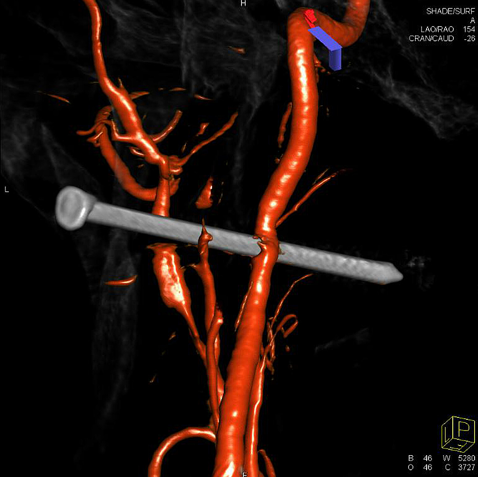 Three-dimensional-reconstruction-of-the-left-internal-carotid-artery-rotational-angiogram-demonstrated-penetrating-nail-injury-to-the-carotid-artery-with-preserved-flow-and-vasospasm-at-the-level-of-injury