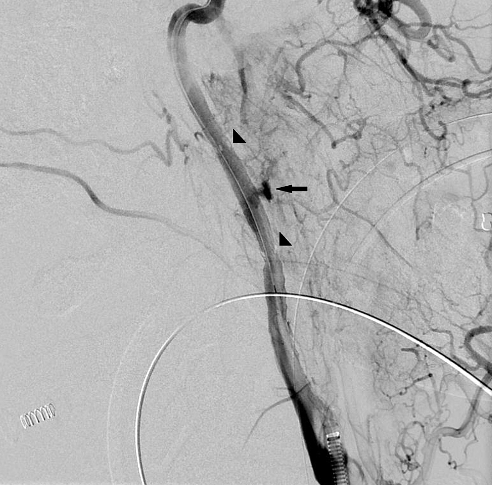 Left-internal-carotid-artery-angiogram-after-deployment-of-Viabahn-stent-graft-and-removal-of-the-nail-demonstrated-preservation-of-flow-through-the-artery-and-active-extravasation-from-the-mid-portion-of-the-stent-(arrow).-Arrowheads-indicating-proximal-and-distal-stent-markers