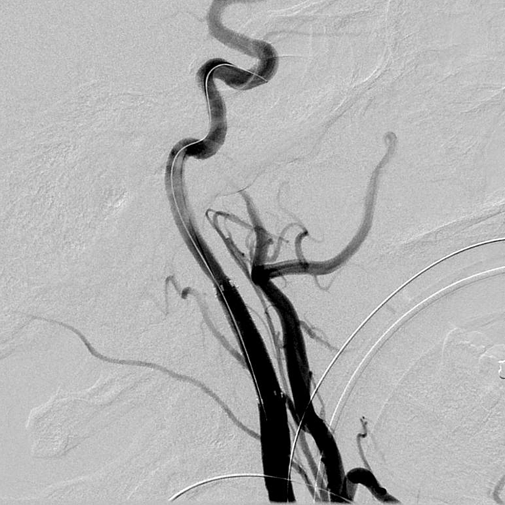Left-internal-carotid-artery-angiogram-after-balloon-angioplasty-of-the-stent-demonstrated-no-further-extravasation-and-better-vessel-wall-apposition