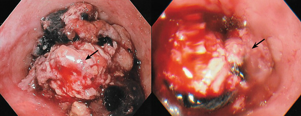 Endoscopic-visualization-of-the-obstructing-esophageal-lesion-(black-arrow)-with-thrombus-and-hemorrhage