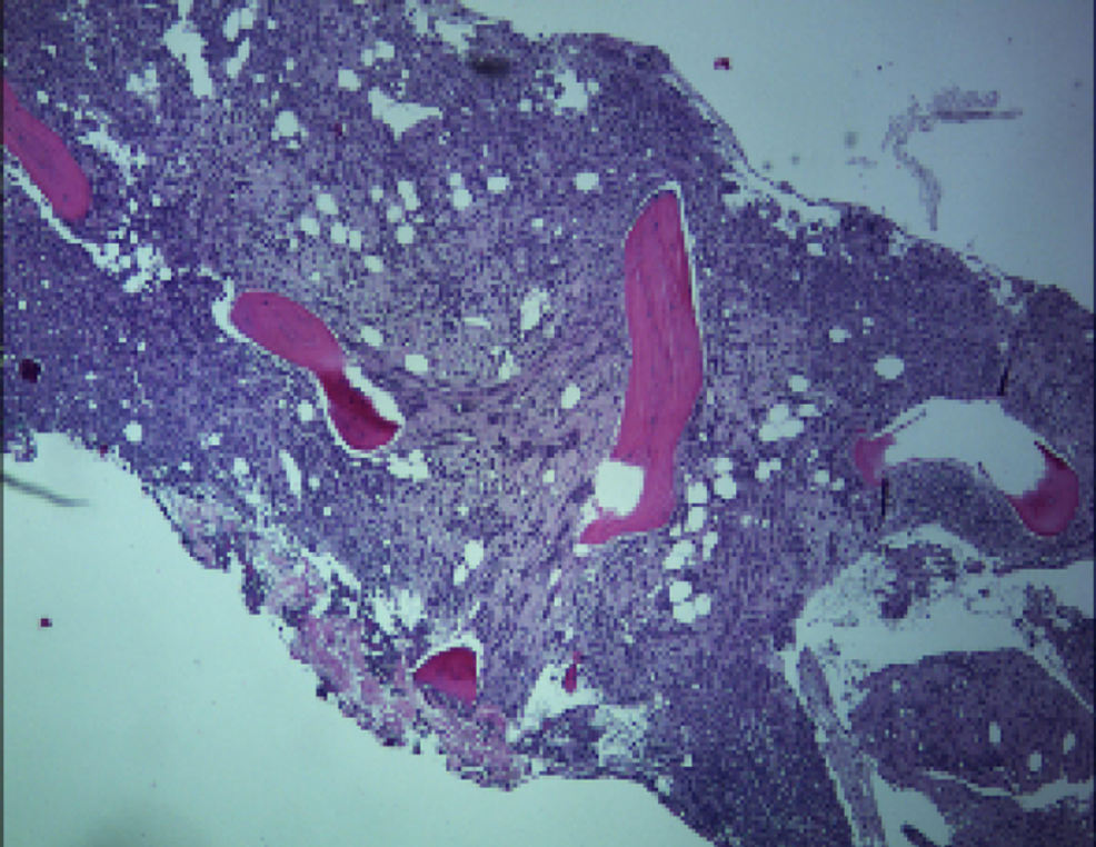 Low-power-microscopic-image-of-the-bone-marrow-filled-with-neoplastic-cells.