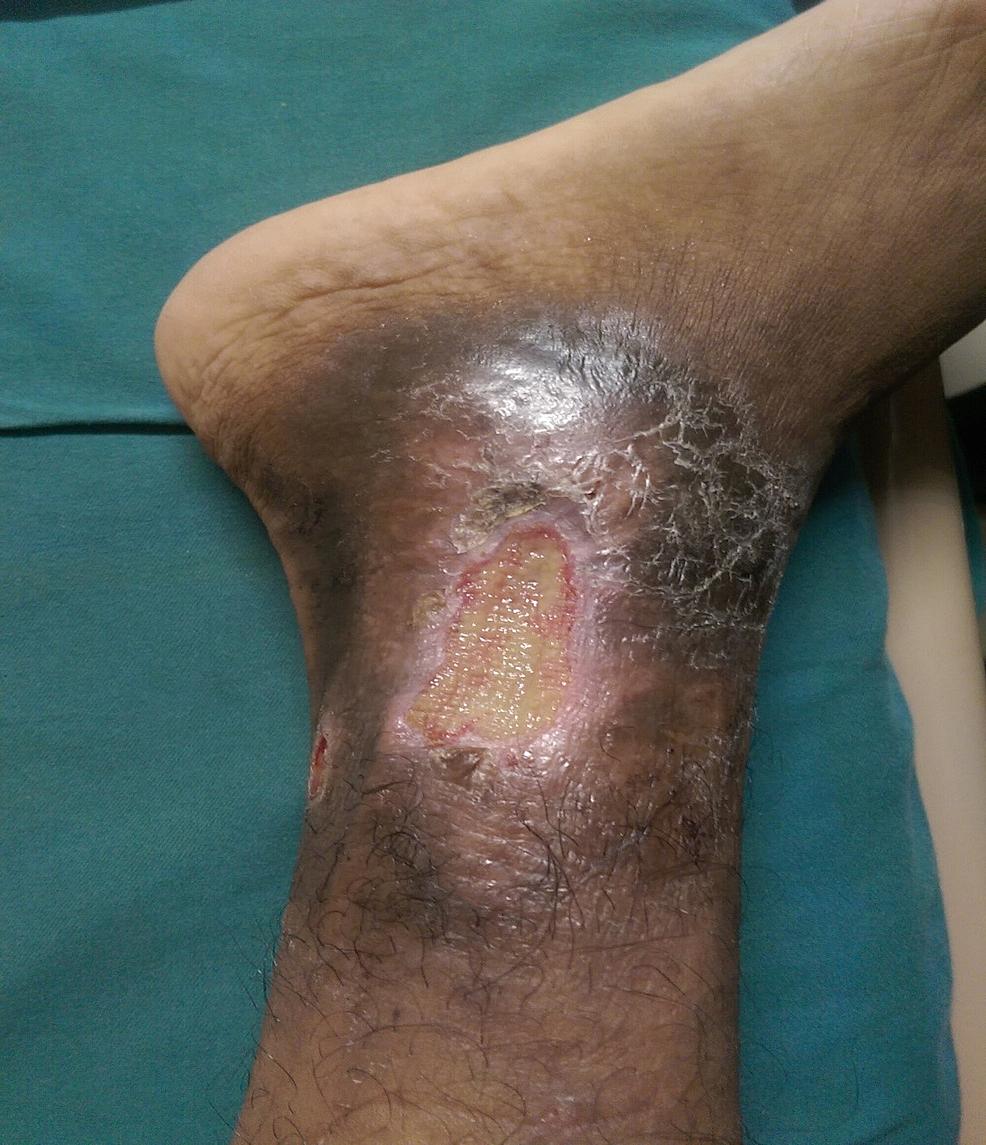Leg-ulcer-(non-healing)