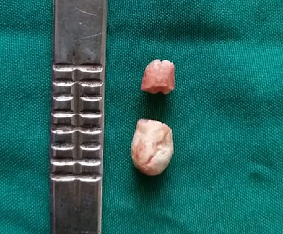 Submandibular-gland-sialolith