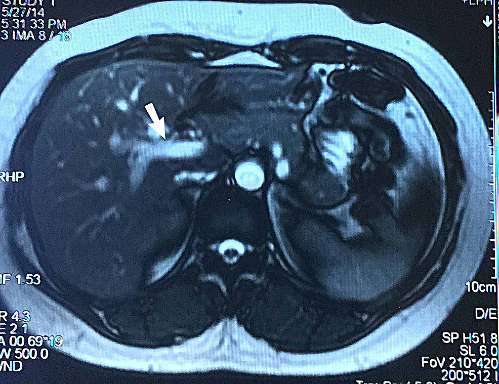 Magnetic-resonance-cholangiopancreatography-(MRCP)-showing-fusiform-dilatation-of-common-bile-duct-measuring-2.3-cm-in-transverse-dimension-along-with-dilatation-of-common-hepatic-duct-suggestive-of-type-I-biliary-cyst.