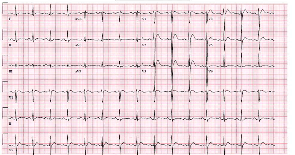 Electrocardiogram-(EKG)-with-QTC-393-ms