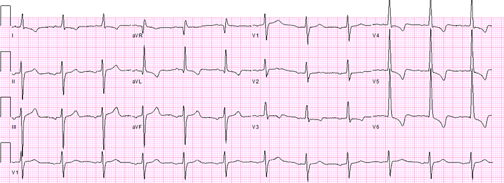 Electrocardiogram-findings-during-first-admission--