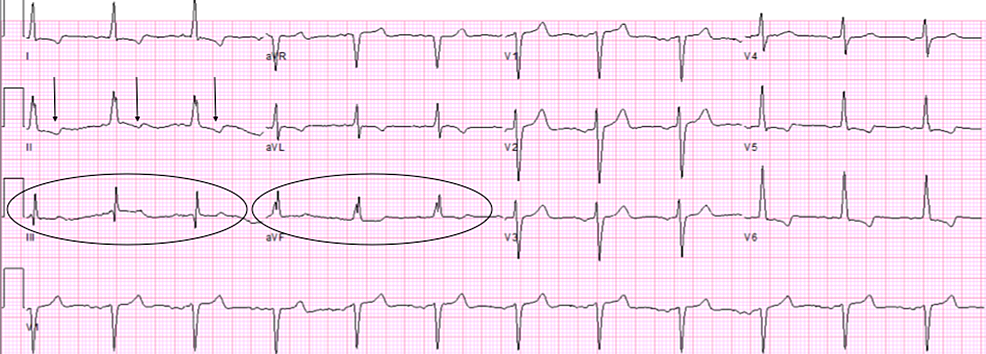 Electrocardiogram-findings-during-second-admission