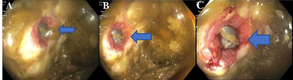 Flexible-sigmoidoscopy-imaging-showing-a-fistula-within-the-sigmoid-colon-(blue-arrows,-panels-A,-B,-and-C).