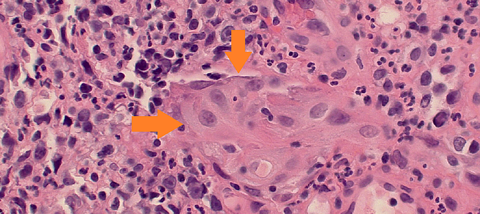 Entrapped-urothelium-with-focal-squamous-metaplasia-within-the-granulation-tissue-wall-of-the-fistula-tract.-Cytologic-atypia-and-the-pseudo-invasive-pattern-raises-the-question-of-infiltrating-urothelia-or-squamous-carcinoma-of-bladder-(orange-arrows).