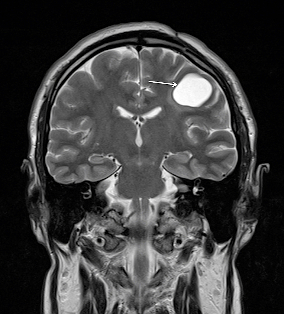 Postoperative-MRI-with-contrast-enhancement-at-eight-months-follow-up-demonstrating-the-residual-cyst-(arrow)-without-contrast-accumulation,-decrease-in-size,-and-no-mass-effect-on-the-coronal-T2WI-view.