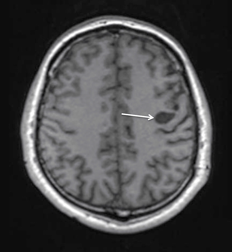 Postoperative-MRI-with-contrast-enhancement-at-two-year-follow-up-demonstrating-the-residual-cyst-(arrow)-without-contrast-accumulation,-further-decrease-in-size,-and-no-mass-effect-on-the-T1WI-axial-view.