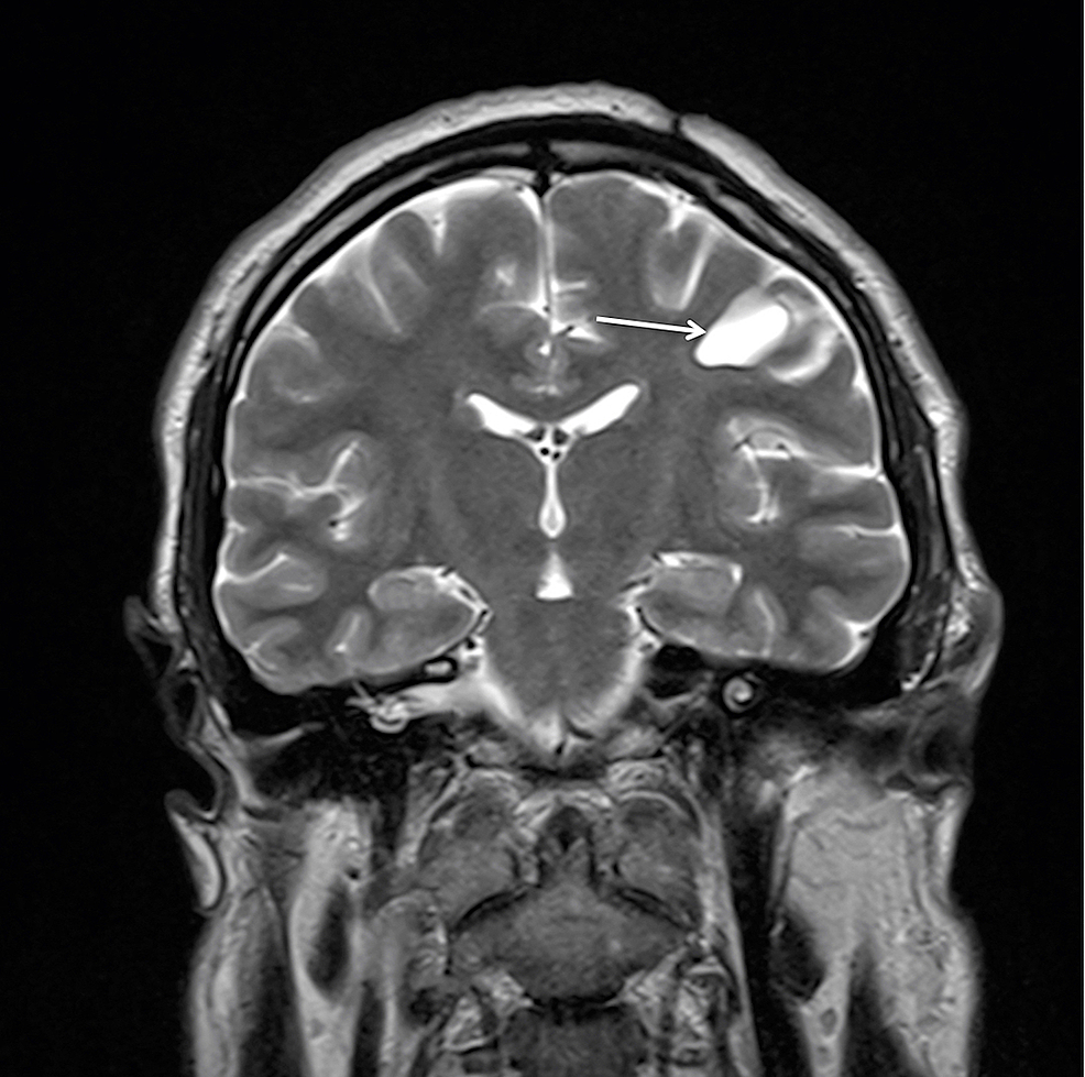 Postoperative-MRI-with-contrast-enhancement-at-two-year-follow-up-demonstrating-the-residual-cyst-(arrow)-without-contrast-accumulation,-a-further-decrease-in-size,-and-no-mass-effect-on-the-T2WI-coronal-view.