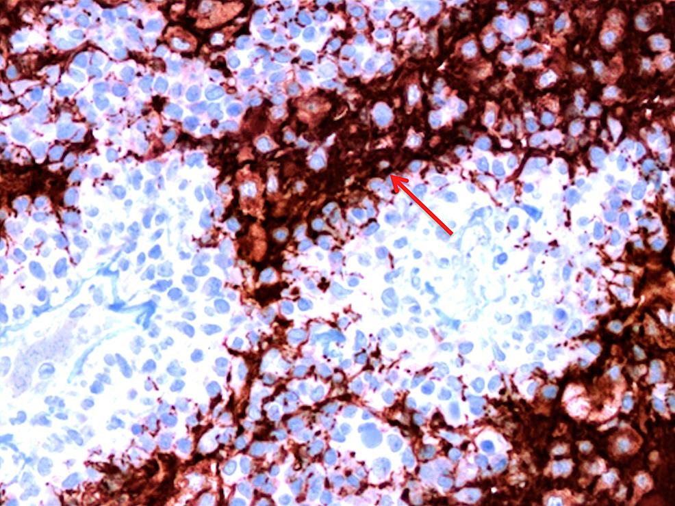 A-40x-magnification-view-of-small-GFAP-positive-cells-surrounding-vessels-(arrows).
