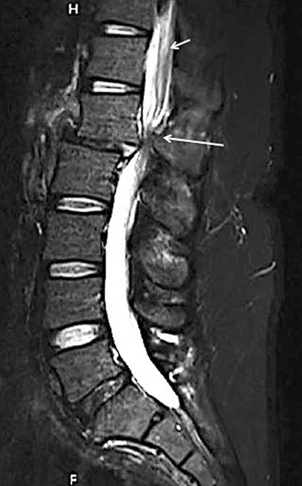 MRI-L-spine-post-mobilization-