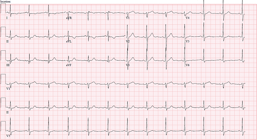 Electrocardiogram-on-presentation-to-the-emergency-room