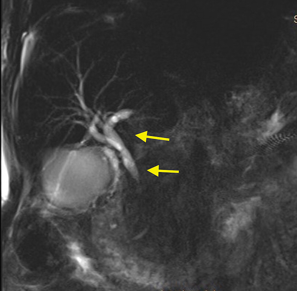 MRI-of-the-abdomen-and-pelvis-showing-intra-hepatic-bile-duct-dilation-with-common-bile-duct-narrowing-(arrows)