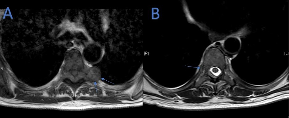 (A)-Axial-Magnetic-Resonance-Imaging-(MRI)-at-T5-Vertebral-Level-on-Day-One-of-Admission.-(B)-Axial-MRI-at-T8-Vertebral-Level-on-Day-One-of-Admission.