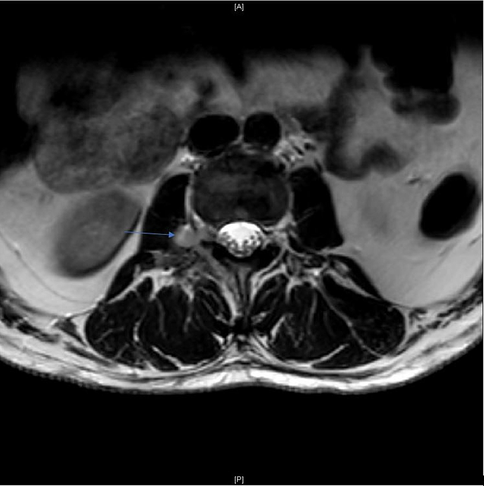 T2W-Axial-Magnetic-Resonance-Imaging-(MRI)-at-L2/L3-Level-on-Day-One-of-Admission.