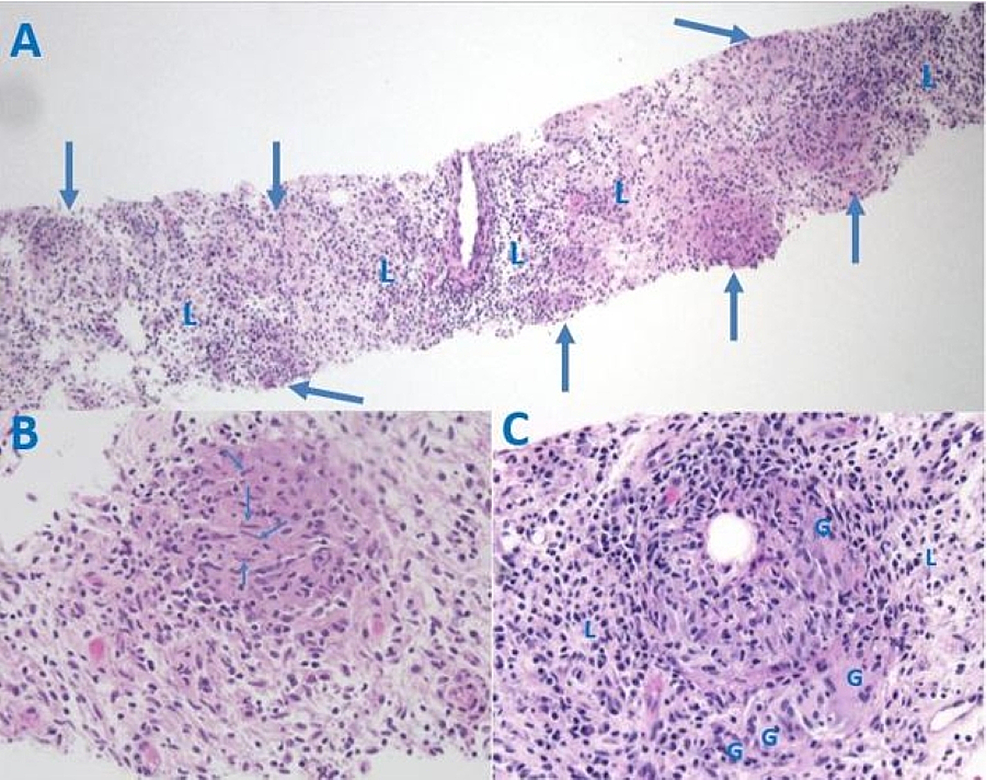 Histology-of-the-Paraspinal-Mass,-Hematoxylin-and-Eosin-(H&E)-Staining.