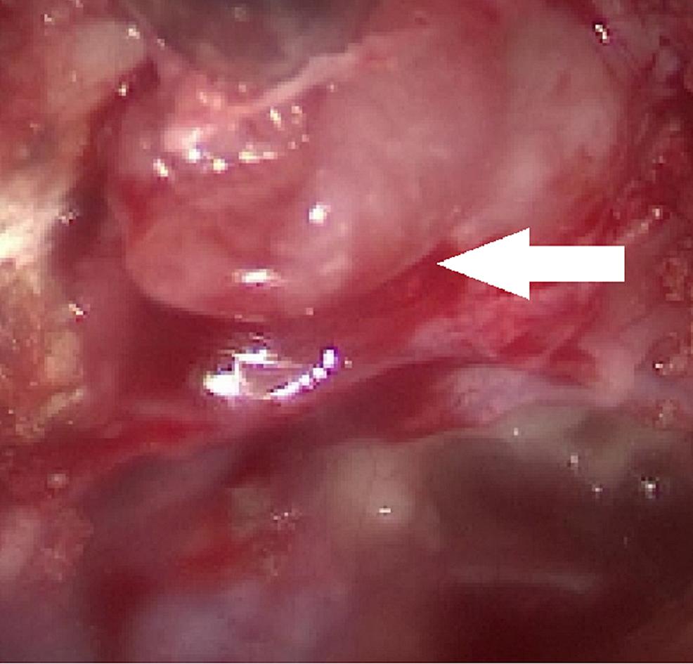 Endoscopic-Frontal-Sinus-Surgery