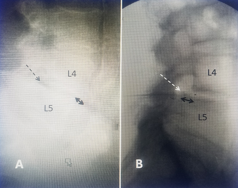 Comparison-of-different-quality-lateral-views-using-plain-X-rays-and-digital-imaging-to-evaluate-L4-5-spondylolisthesis-in-the-same-patient.