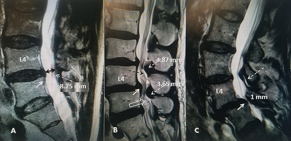 Sagittal-T2-MRI-scans-compared-in-three-different-patients-with-different-grades-of-spinal-stenosis.