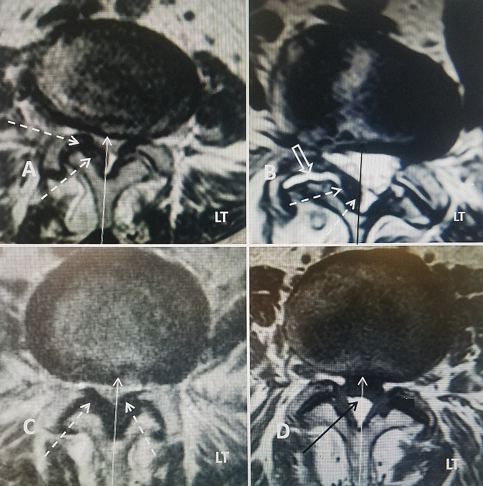 -Four-cases-showing-the-axial-T2-MRI-at-L4-5-showing-different-anatomic-locations-and-severity-of-the-stenosis-from-central-stenosis-to-lateral-recess-stenosis.-Left-is-marked-(LT).-When-correlated-with-clinical-symptoms-and-findings,-different-methods-of-correcting-the-lumbar-stenosis-may-be-indicated.