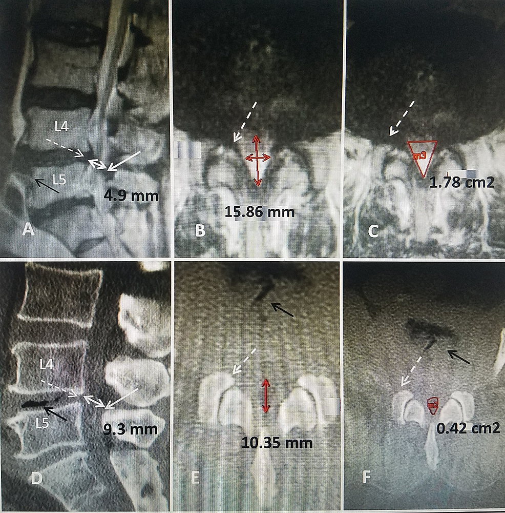 Lumbar-canal-measurements-comparing-both-MRI-and-CT-scans-in-the-same-planes-in-the-same-patient-with-L4-5-stenosis.-