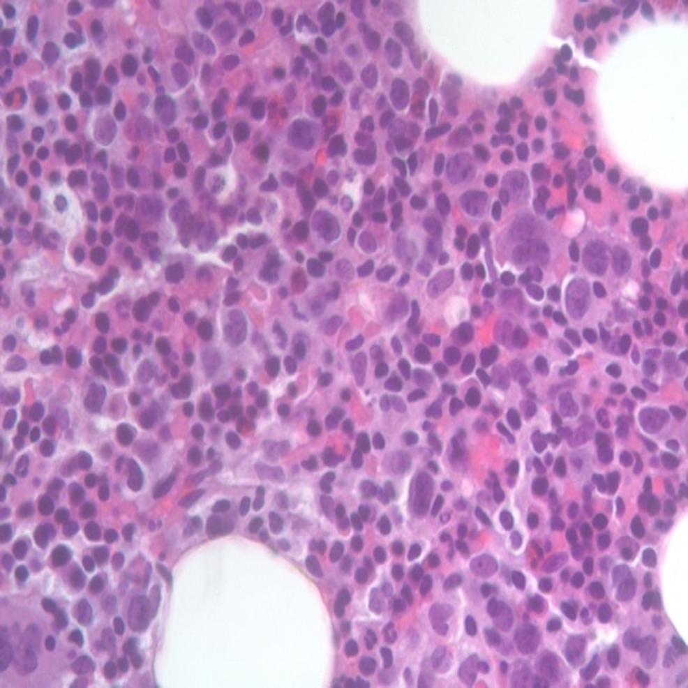 Hypercellular-bone-marrow-with-no-dysplastic-cells.
