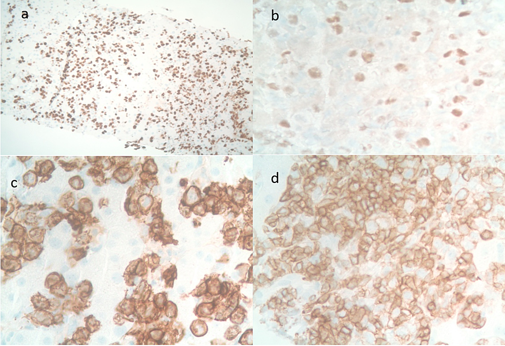 Sections-of-the-liver-with-immunohistochemical-staining.-(a)-Ki67-80%-positive,-(b)-lymphoid-cells-positive-for-BCL6,-(c)-lymphoid-cells-positive-for-CD20-positive,-(d)-lymphoid-cells-positive-for-CD5-positive.