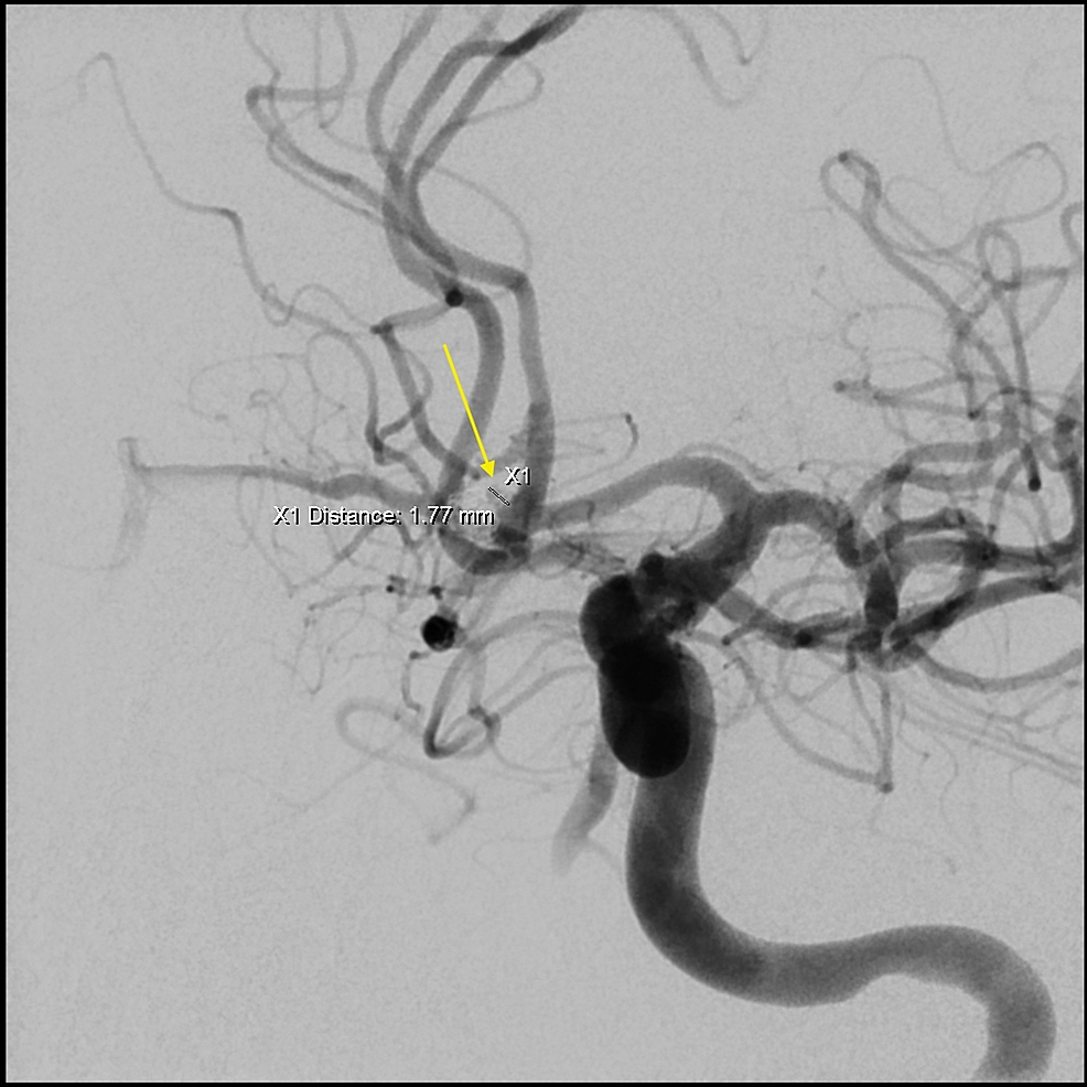 Angiogram-of-left-internal-carotid-artery-revealing-an-aneurysm-remnant,-2-x-1.9-mm-in-size-with-one-coil-loop.