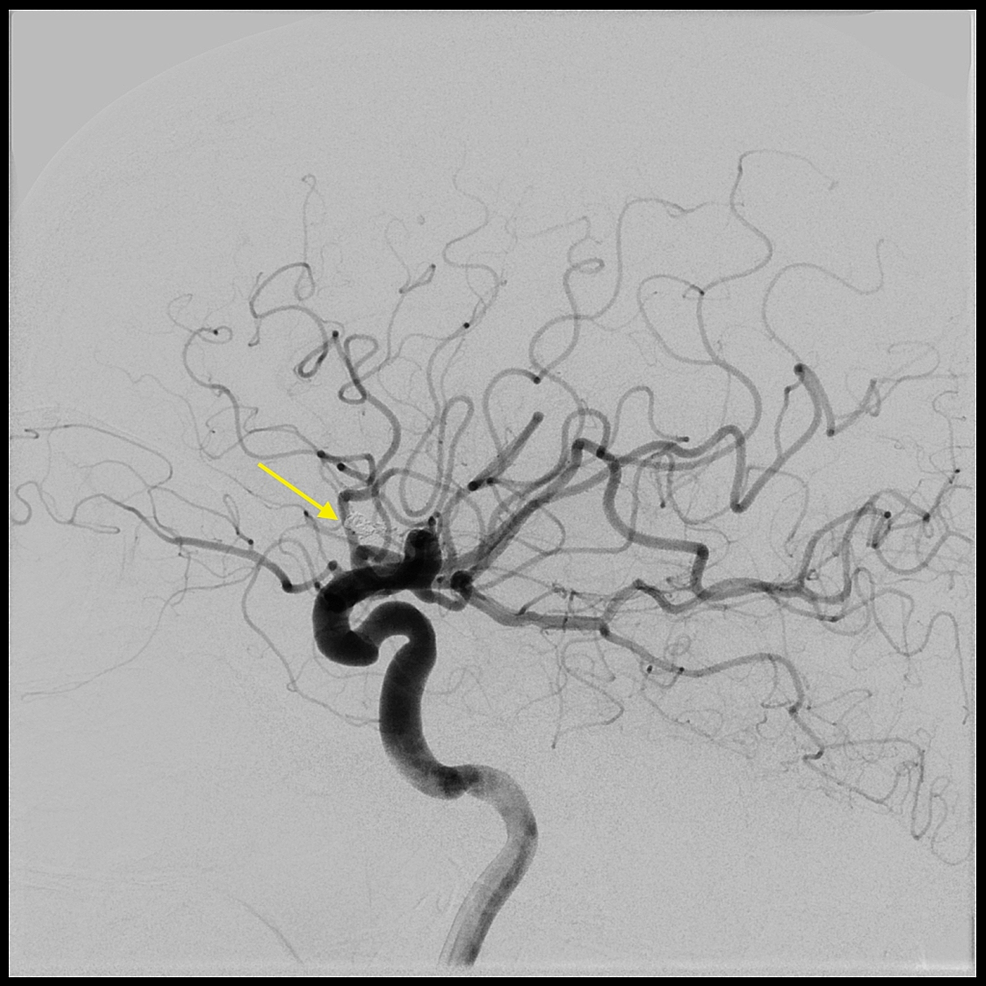Lateral-carotid-angiogram-showing-no-aneurysm-filling-on-six-month-follow-up.