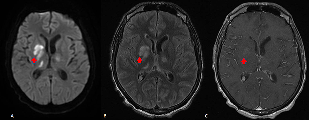 Brain-magnetic-resonance-imaging-(MRI)-at-presentation,-prior-to-treatment-with-mirtazapine