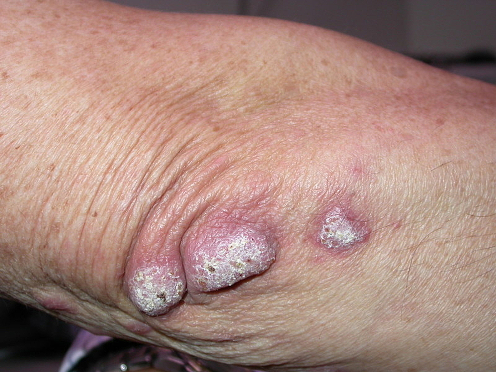 Three-verrucous-plaques-on-the-right-elbow-of-the-patient