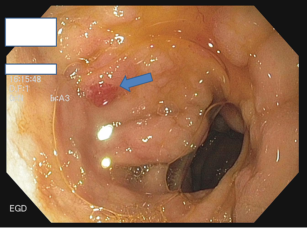 EGD-showing-angioectasias-in-the-first-part-of-the-duodenum-(bulb)