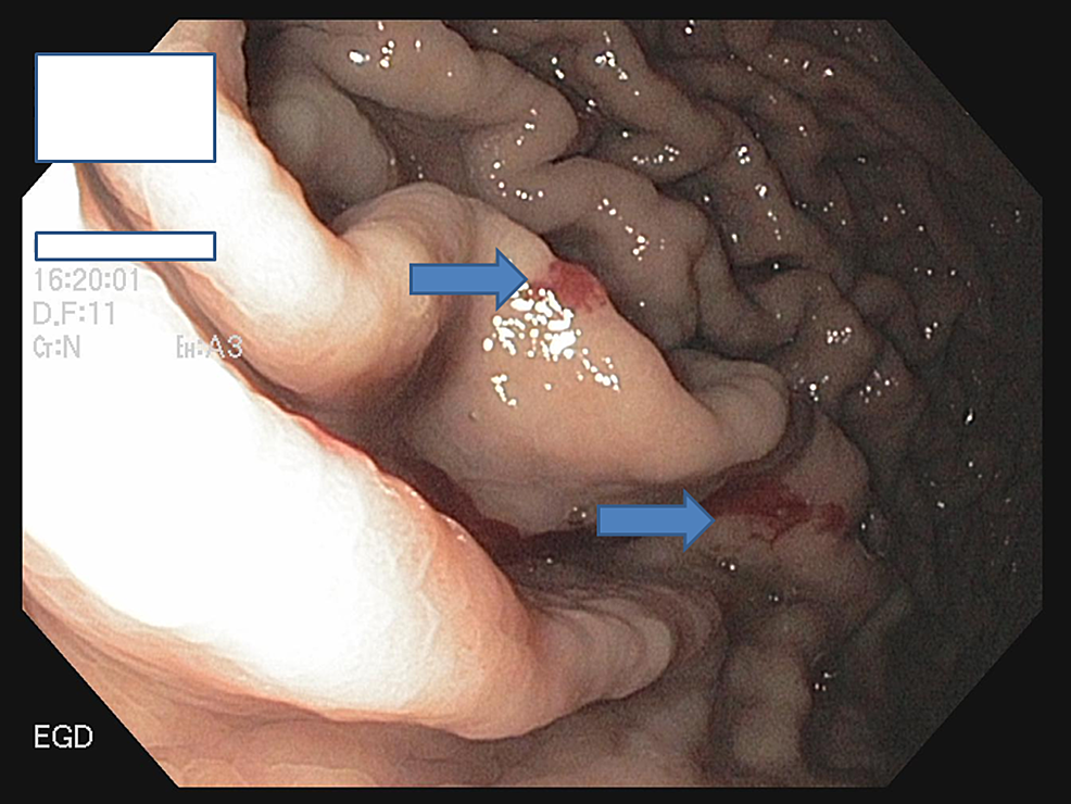 EGD-showing-multiple-angioectasias-at-the-greater-curvature-of-the-stomach