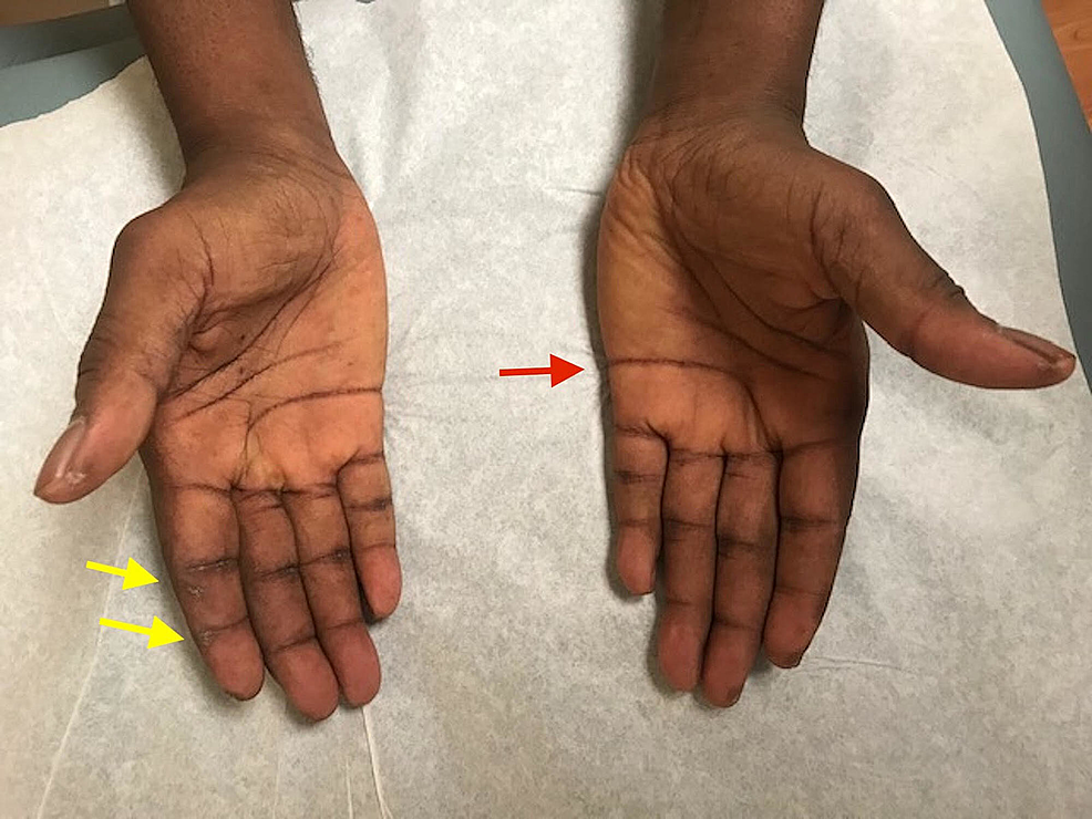 Fissures-and-hyperpigmentation-of-palmar-creases-(red-arrow);-marked-ulceration-of-the-right-second-fingertip-(yellow-arrows)