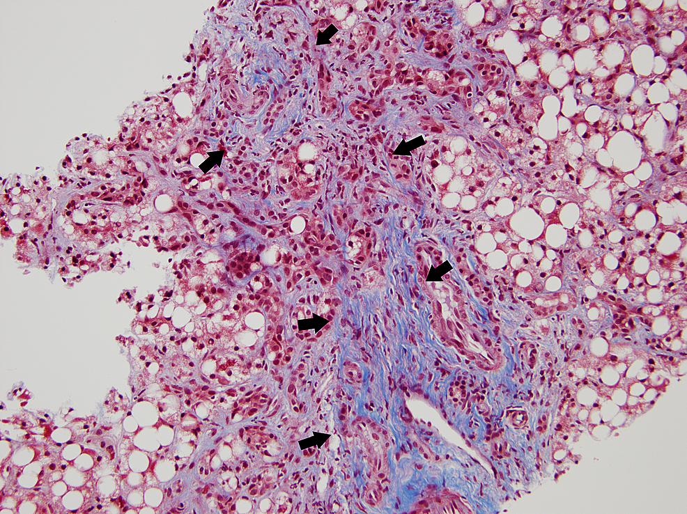 Trichrome-stain-of-the-liver-pathology-slide-showing-F3-fibrosis-(between-the-arrows)