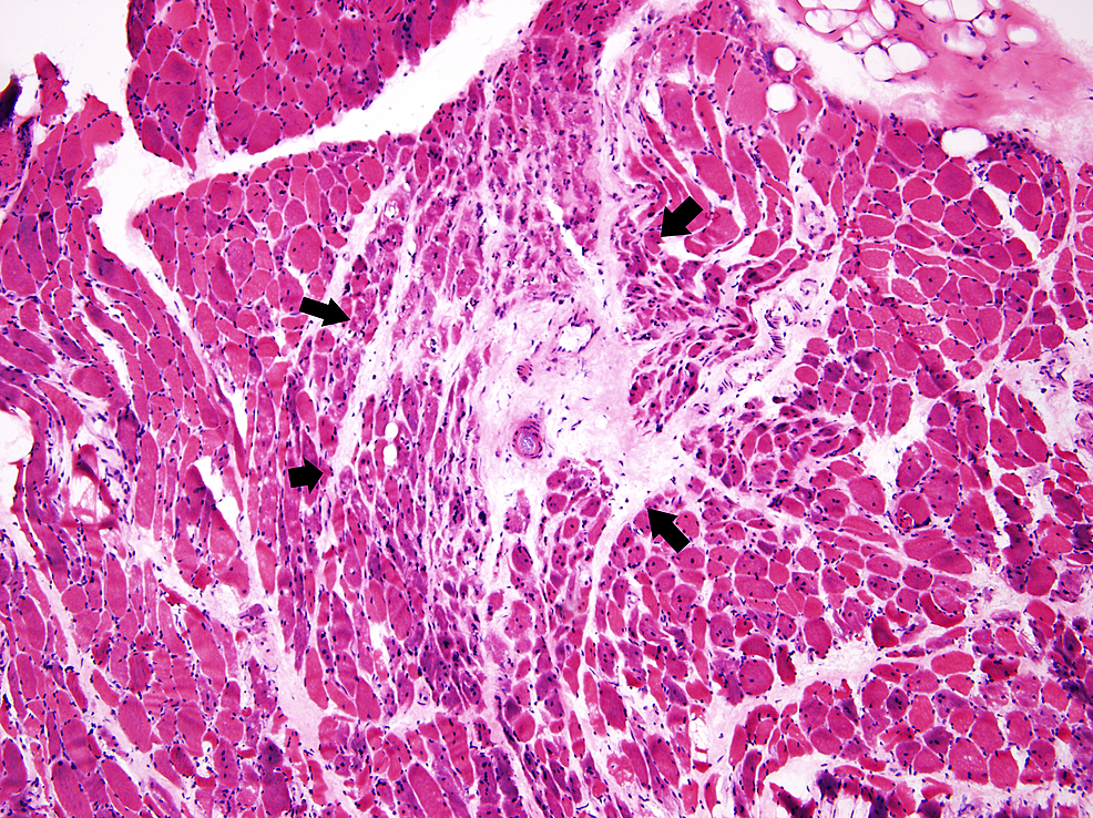 Pathology-slide-from-the-muscle-biopsy-showing-perimysial-atrophy-(present-between-the-arrows)