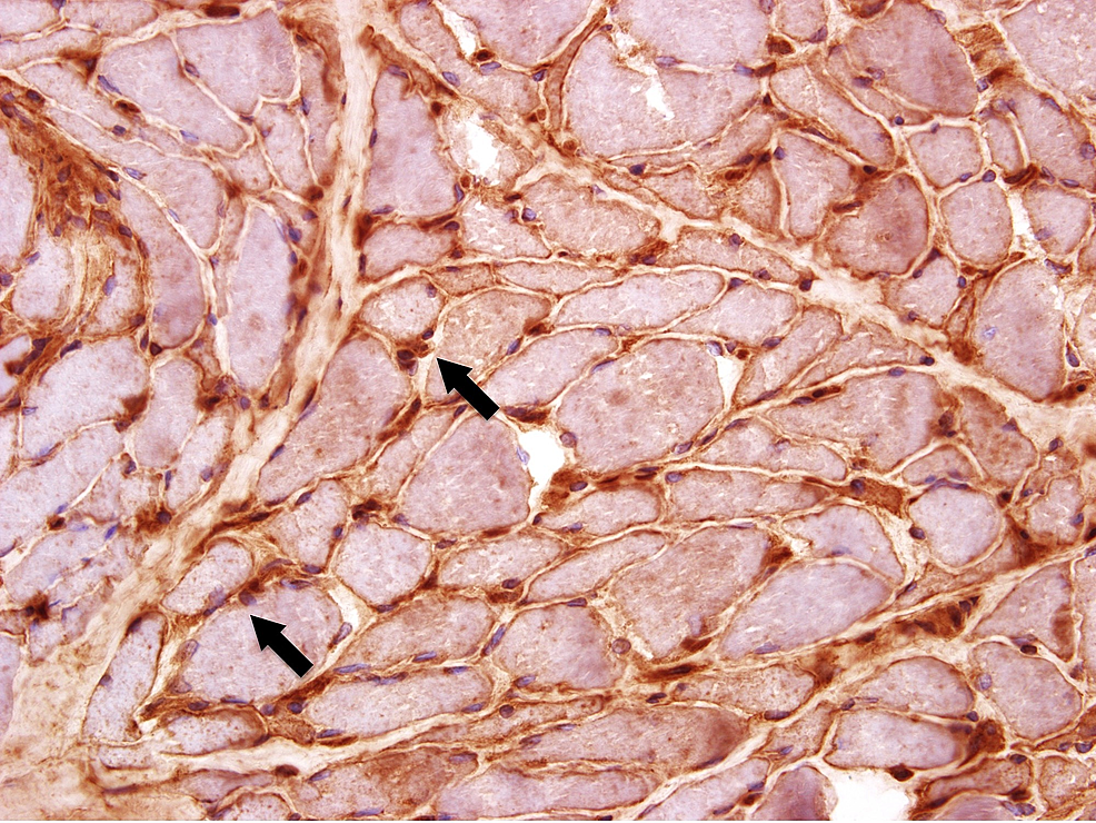 Pathology-slides-from-the-muscle-biopsy-showing-the-sarcolemmal-staining-with-Class-I-MHC-IHC-stain-(marked-by-arrows)