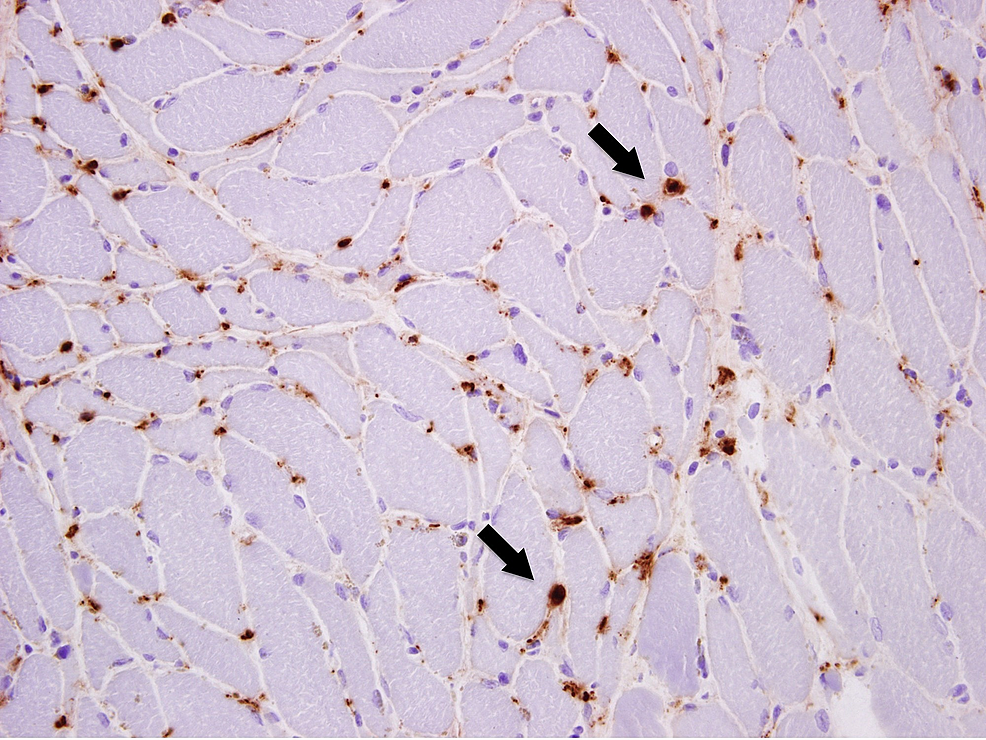 Pathology-slides-from-the-muscle-biopsy-showing-capillary-staining-with-complemental-C5b-9-IHC-(marked-by-arrows)