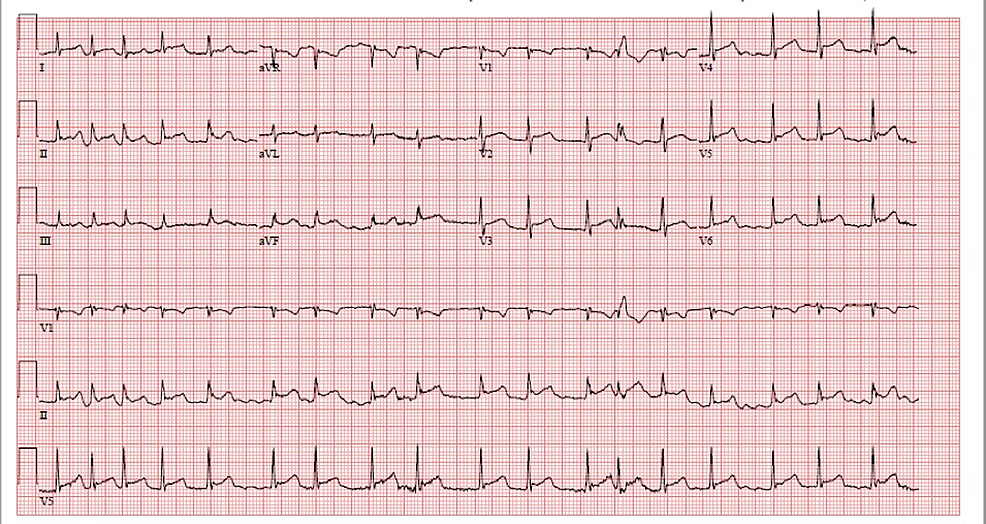 EKG-showing-atrial-fibrillation-and-diffuse-ST-elevations