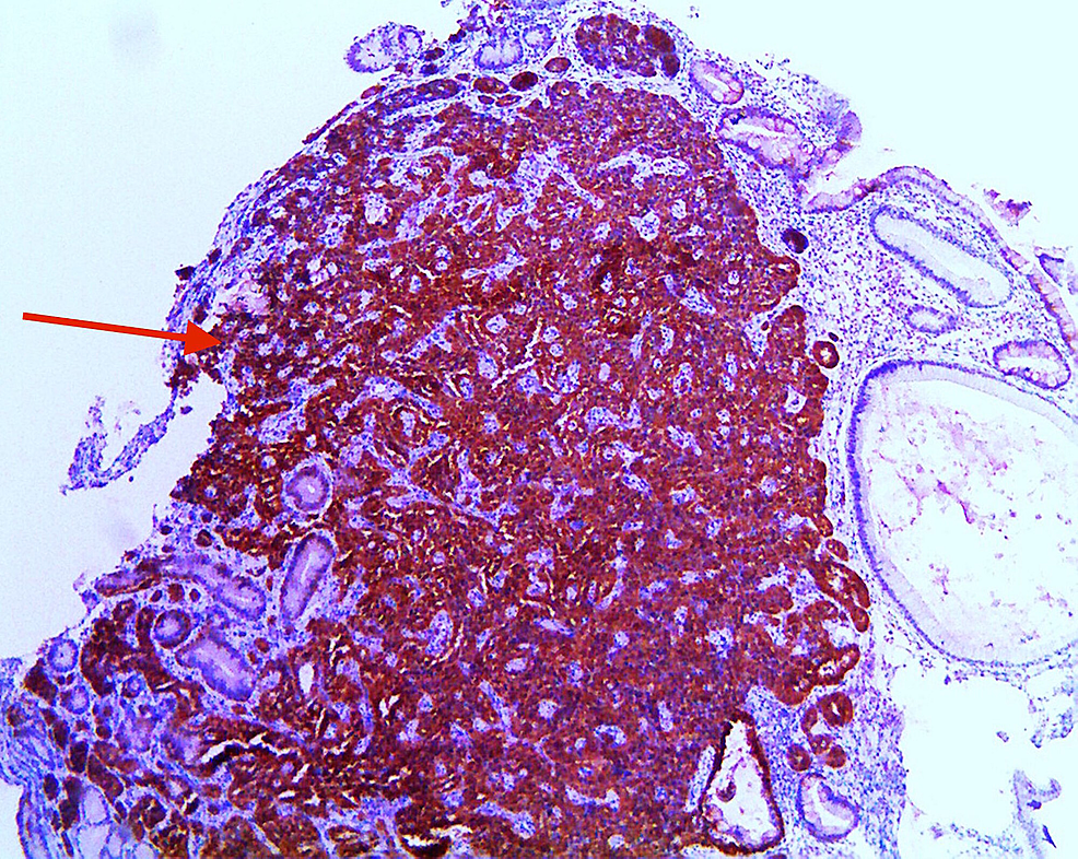 Immunohistochemistry-demonstrating-positive-synaptophysin-stain-(red-arrow)