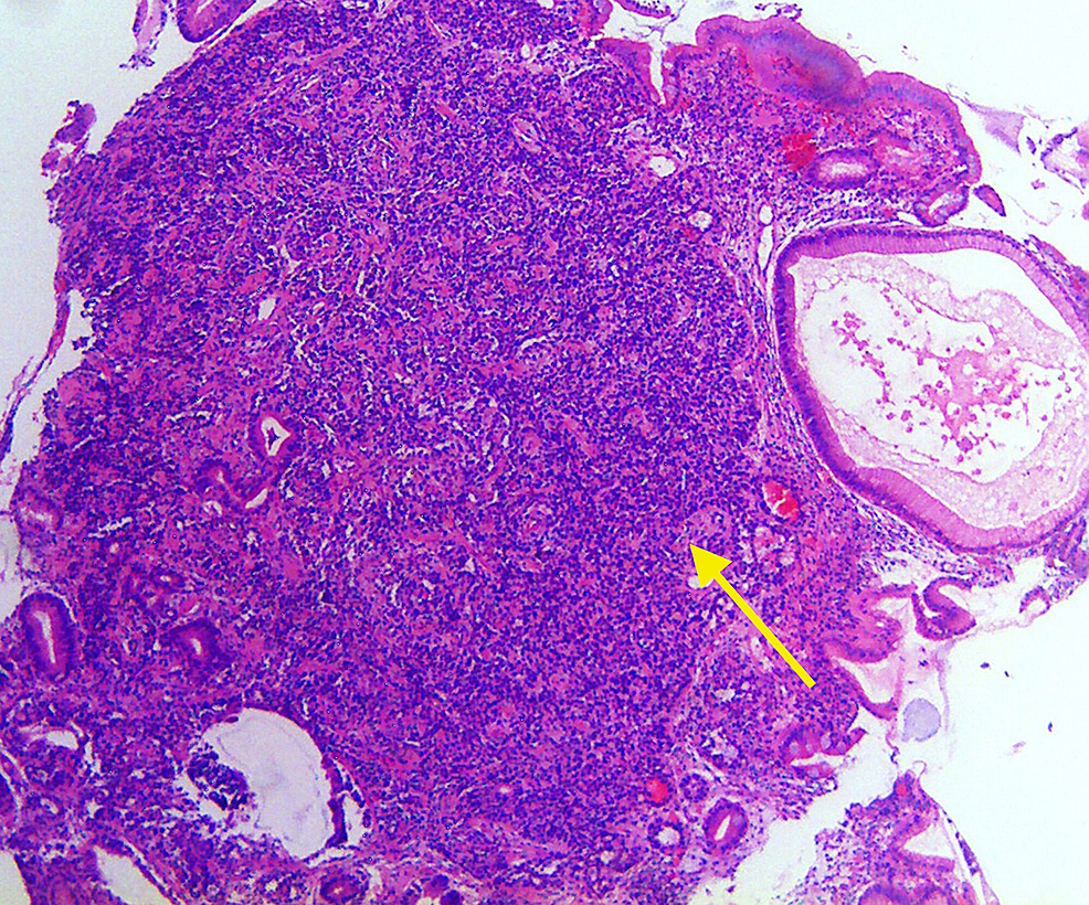 Hematoxylin-and-eosin-stain-(100x)-of-gastric-body-showing-gastric-neuroendocrine-tumor-cells-(yellow-arrow)