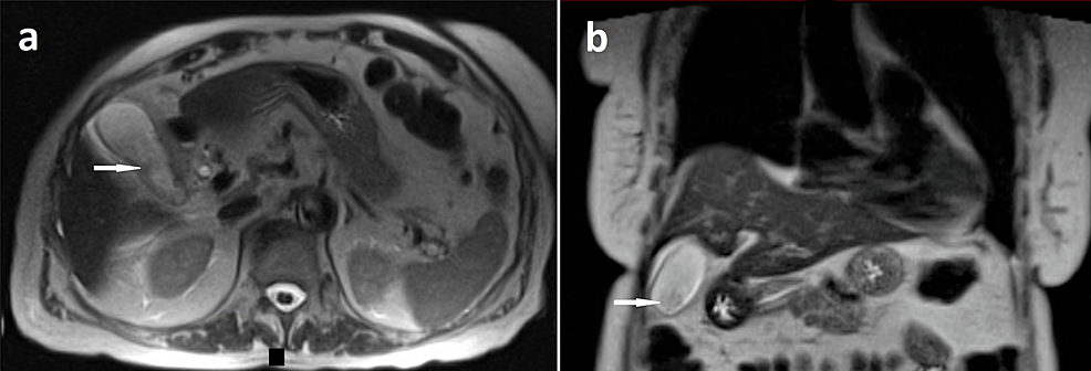 Magnetic-resonance-imaging-(MRI)-of-the-abdomen-showing-sludge-in-the-gallbladder