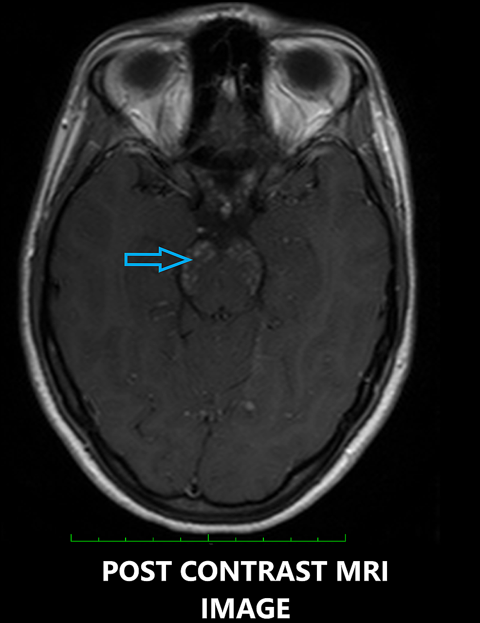 Contrast-enhanced-axial-magnetic-resonance-imaging-(MRI)-showing-peppered-post-contrast-enhancement-in-the-pons-(blue-arrow).