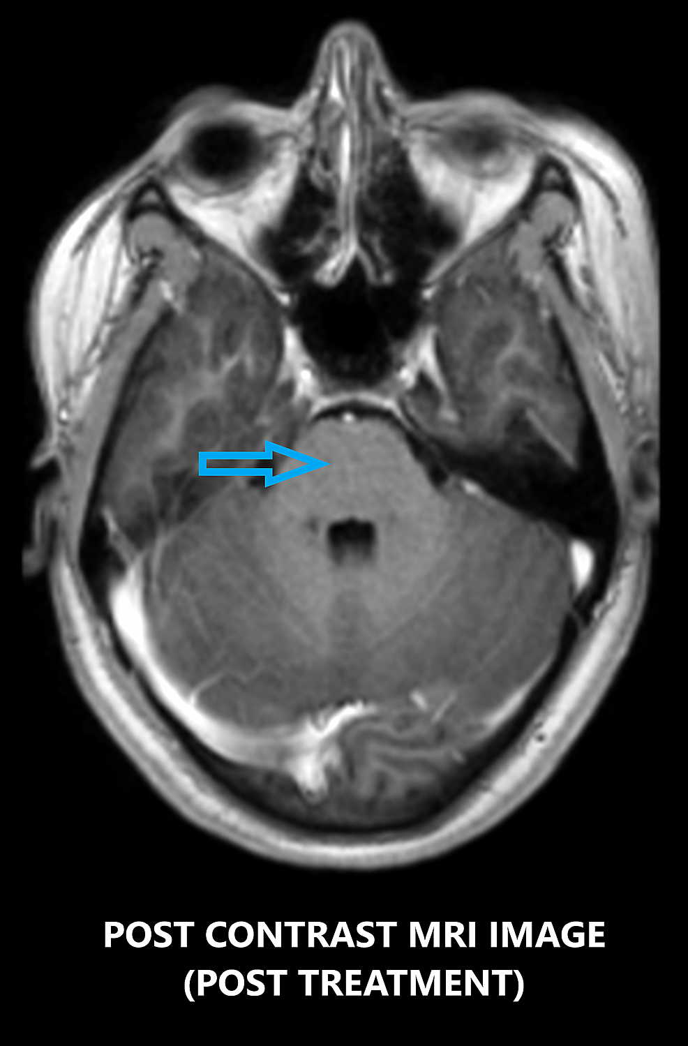 Contrast-enhanced-axial-MRI-image-showing-the-region-of-the-pons-after-treatment-with-high-dose-steroids-depicting-no-punctate-lesions-in-the-brainstem-(blue-arrow).
